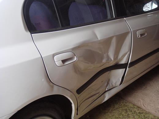 出車禍撞到的部份