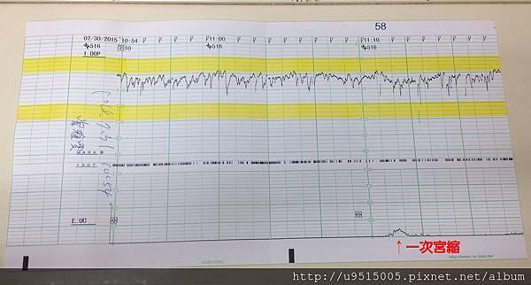 宮縮及胎心音檢測