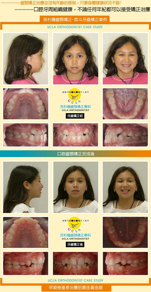 牙齒矯正-戽斗矯正案例分享(一)