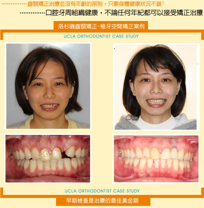 牙齒矯正-植牙空間牙齒矯正案例分享(一)