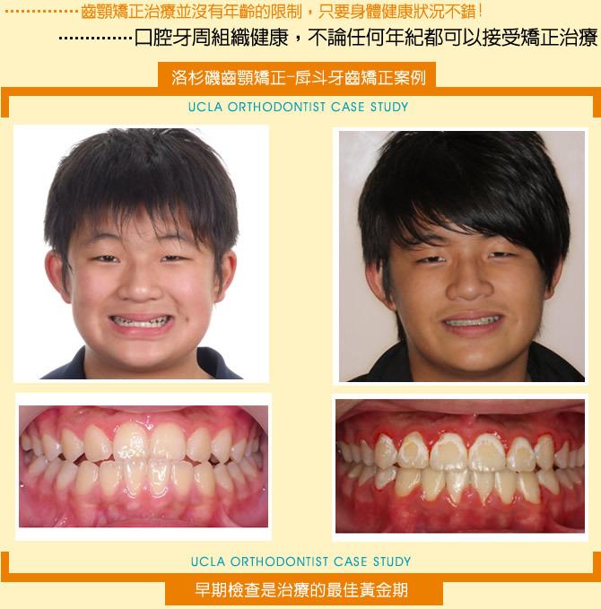牙齒矯正-戽斗牙齒矯正案例分享(二)