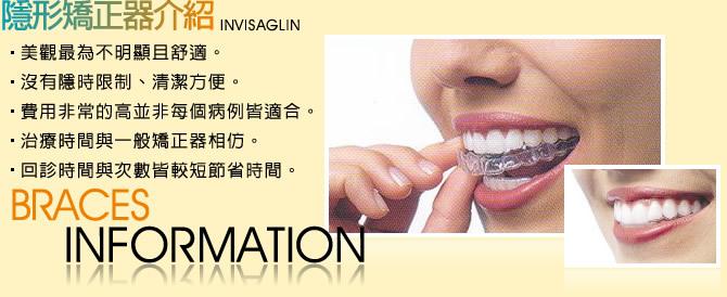 牙齒矯正-隱形牙齒矯正器介紹分享