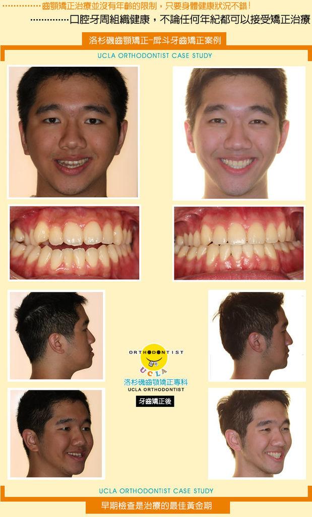 牙齒矯正-戽斗牙齒矯正案例分享(四)