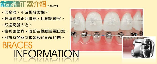 牙齒矯正-戴蒙牙齒矯正器介紹分享