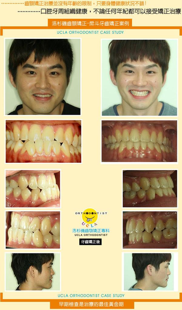 牙齒矯正-戽斗牙齒矯正案例分享(六)