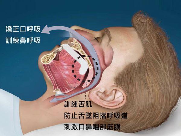 牙套解除大患 遠渡重洋擺脫睡眠呼吸中止症3