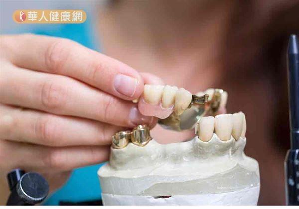 銀髮族笑口常開秘密:從齒顎矯正開始,關鍵在…2