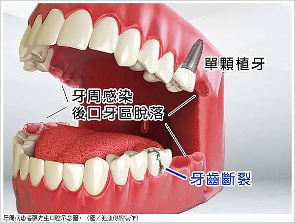 牙齒各司其職缺一不可 植牙不讓好牙應聲倒2