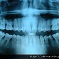 牙齒X光片( 照片取用自維基百科 )