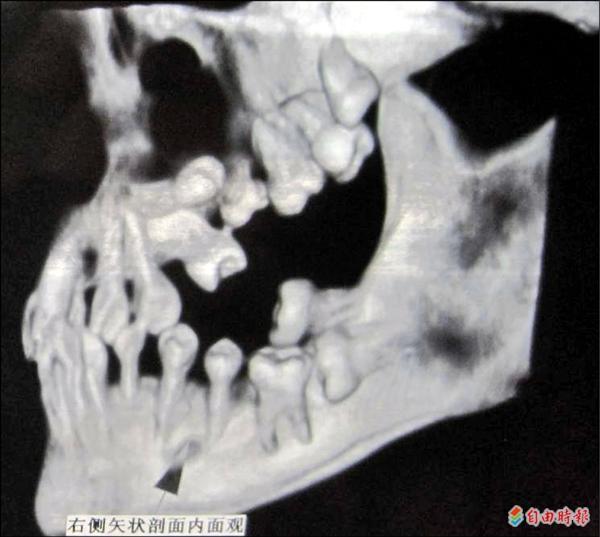 牙齒x-ray.jpg