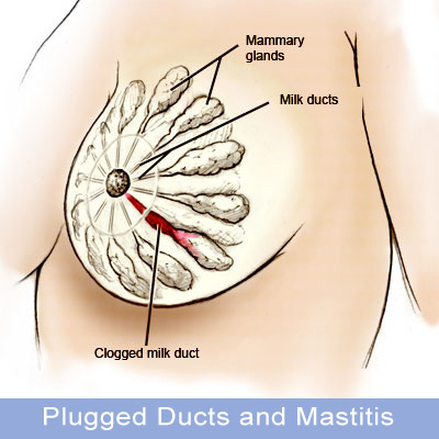 Plugged-Ducts-and-Mastitis