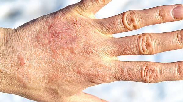 (焦點輪播)圖片:對付難纏乾癬 中醫內外調理多管齊下.jpg