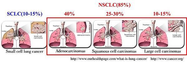 肺癌(2)-1.jpg