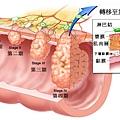 腸癌分期.tif
