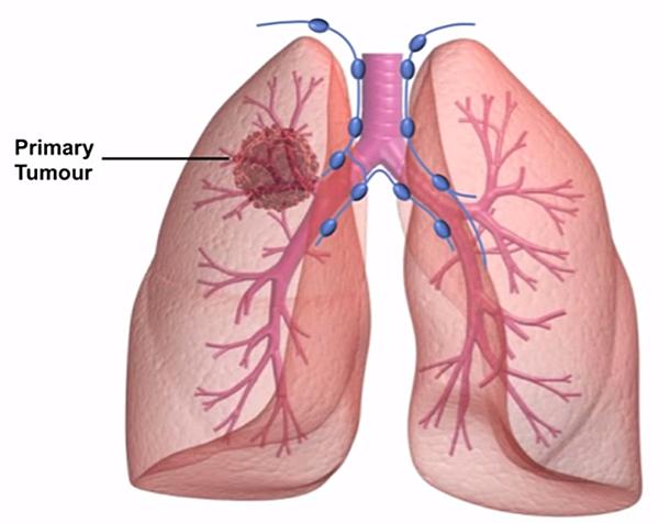 肺癌.png