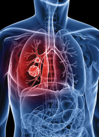 1. Lung cancer.tif
