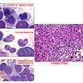 MDS histopathology.tif