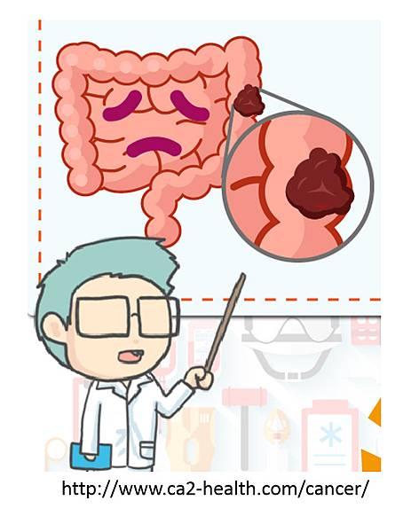 腸癌分期診斷-0.tif