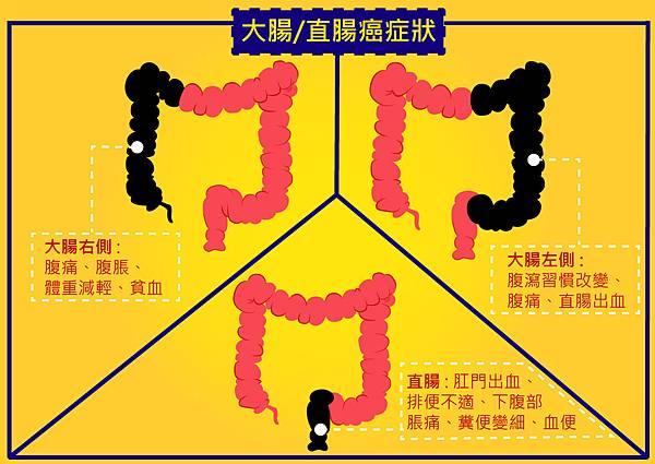 51大腸直腸癌的臨床表現.jpg