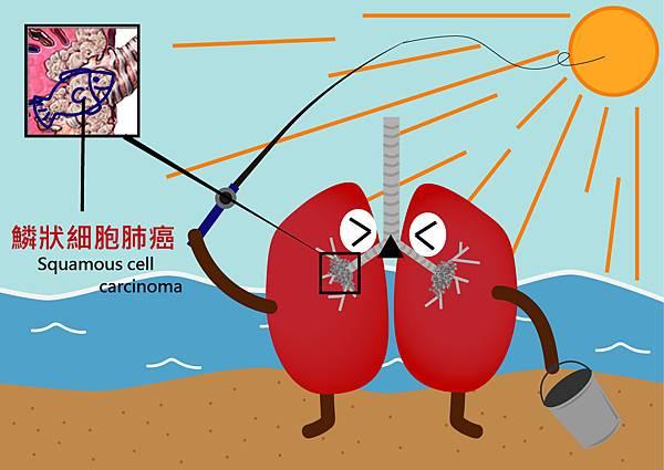 46鱗狀細胞肺癌.jpg