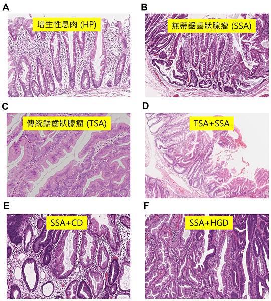 colon polyp BRAF-Histology.tif