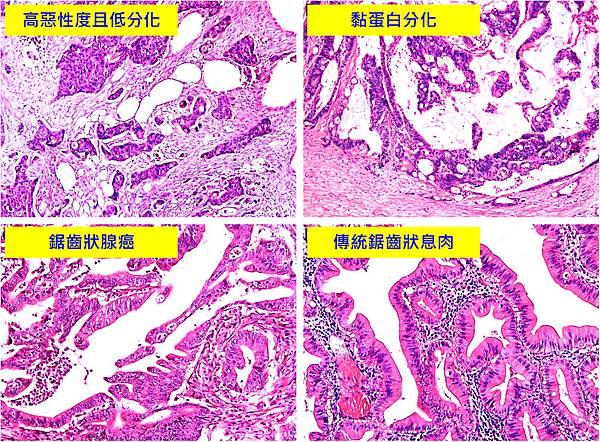 CRC-BRAF mutation-histopathology.tif