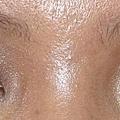 眼部-閃光1.JPG
