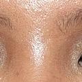 眼部-閃光2.JPG