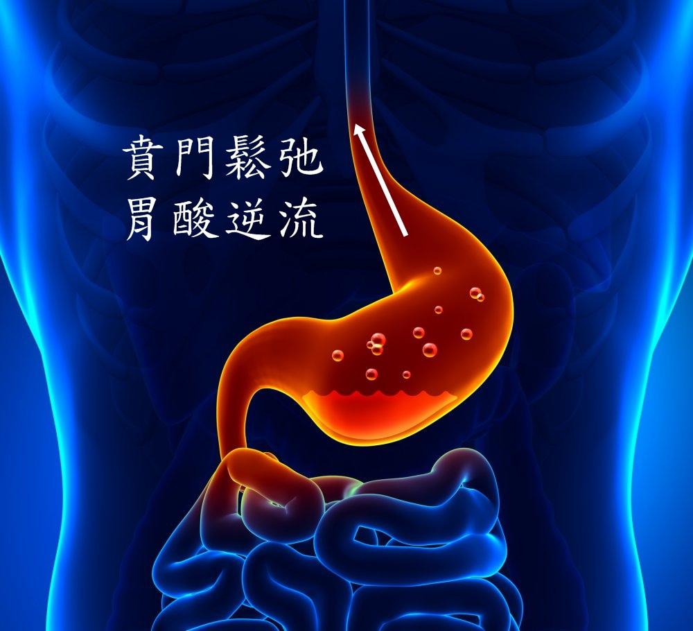 胃食道逆流示意.jpg