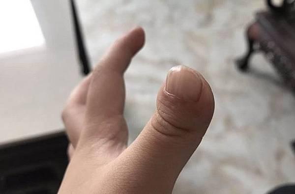 小兒拇指斷裂新生,佛法真實不虛7.jpg
