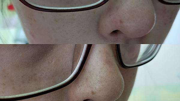 前後左JUSO KURO PACK 2分鐘去黑頭粉刺泡泡奇蹟鼻膜
