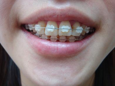 [健康醫藥] 齒列矯正/快50歲了 有必要矯正牙齒嗎?