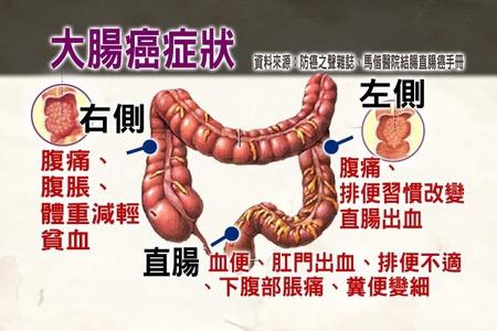 大腸癌是怎麼發生的-PART 2