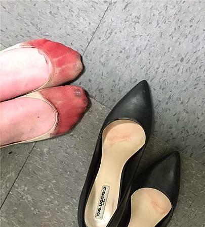第一眼看到的人會以為鞋子褪色,但事實上這是女性從事服務業的辛酸...