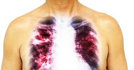 ♥ [影片分享] 肺癌多是「拖」出來的,提醒:身上若有「1粗3痛」,快去查肺CT.jpeg
