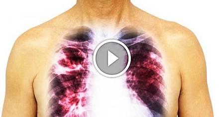 ❤ [影片分享] 肺癌多是「拖」出來的,提醒:身上若有「1粗3痛」,快去查肺CT.jpeg
