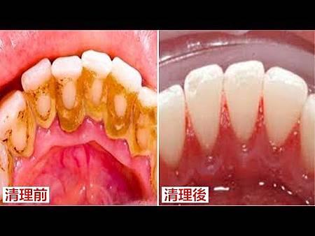 ❤ [影片分享] 牙結石不要花錢去洗牙!用一個土方法,自己家裡輕鬆去除牙結石!牙結石全部清理乾淨!.jpg