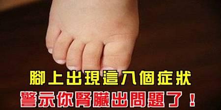 腳上出現這八個症狀,警示你腎臟出問題了!要當心了.jpg
