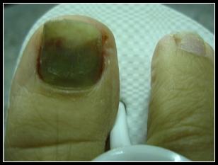 My foot 001.jpg