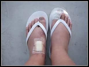 My foot 002.jpg
