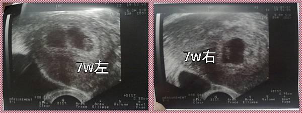 2011-07-07雙寶6W5D.jpg