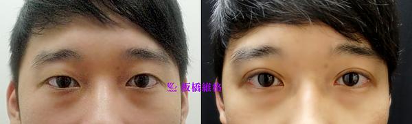 振倫雙眼皮術前術後一個月