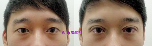 振倫雙眼皮術前術後