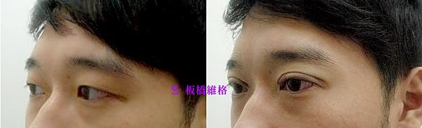 振倫雙眼皮術前術後2