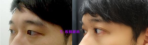 振倫雙眼皮術前術後一個月2