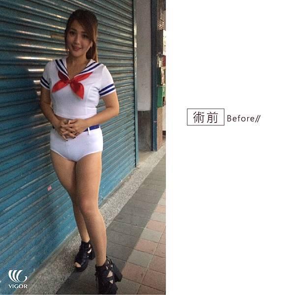 莫葵_術前術後生活照-01.jpg