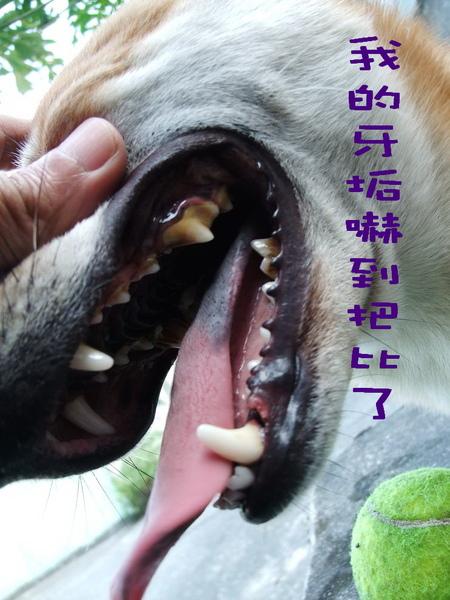 洗牙前牙垢.jpg