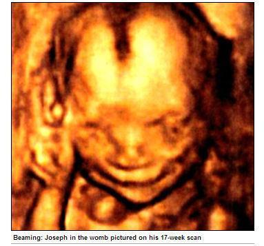 微笑胎兒-17周大的「胎兒版約瑟夫」,出生前不知在笑啥.JPG