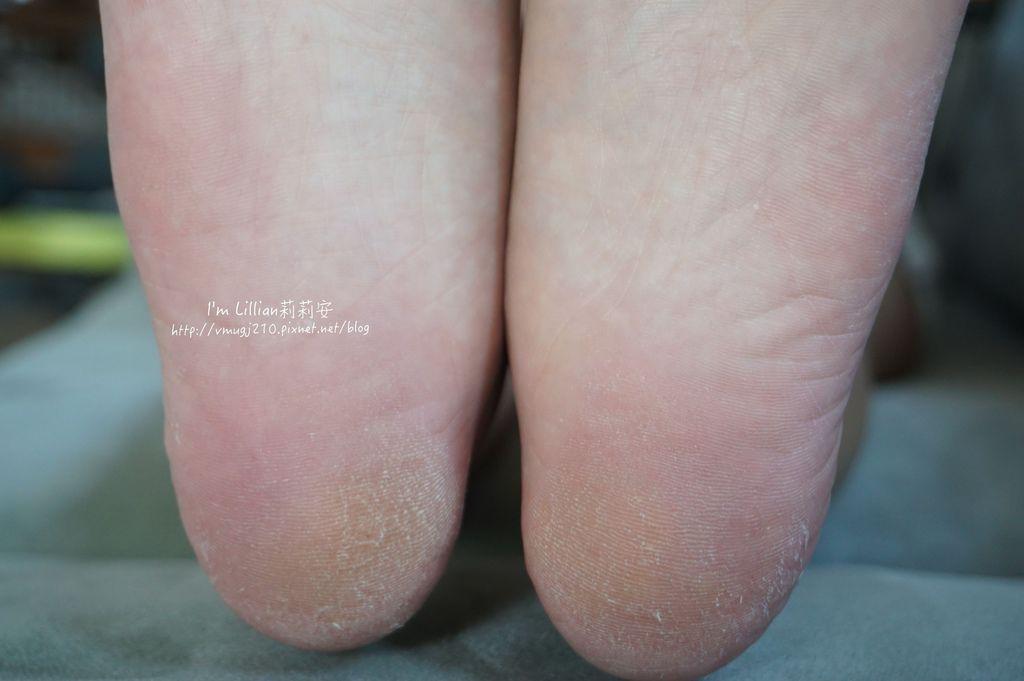 去腳皮推薦 FoottyFootty杏仁牛奶酸足膜57腳膜推薦.JPG