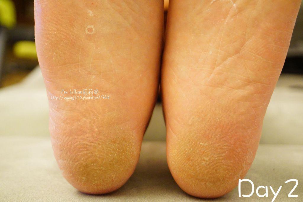 3去腳皮推薦 FoottyFootty杏仁牛奶酸足膜123腳膜推薦.jpg